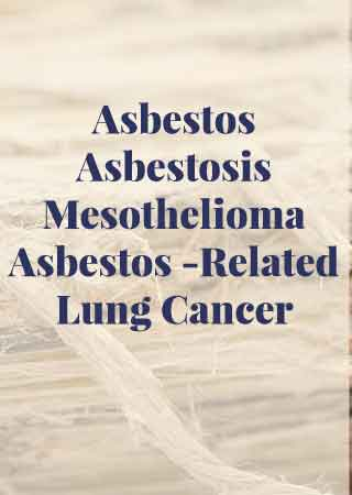 Asbestos-Asbestosis-Mesothelioma-Asbestos-Related-Lung-Cancer, diagnosis, diseases, legal help, compensation, medical treatment